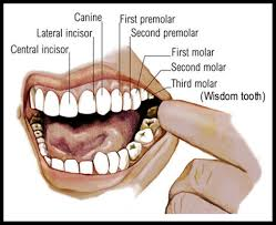 Homeopathic Remedies for Tooth/Teeth Problems
